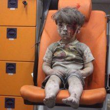 El niño herido en un bombardeo: un reflejo del infierno en Siria