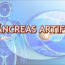 Páncreas artificial en pacientes con diabetes